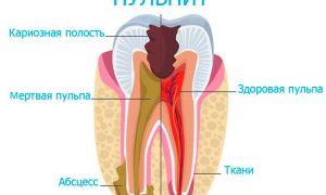 Пульпит зуба: что это такое, как лечить?