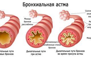 Бронхиальная астма. Лечение народными средствами