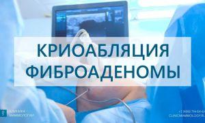 Фиброаденома молочной железы — лечение без операции