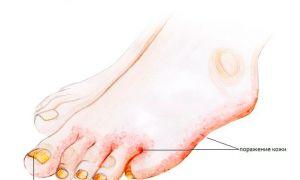 Симптомы микоза стопы