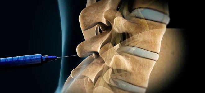 Уколы при остеохондрозе поясничного отдела