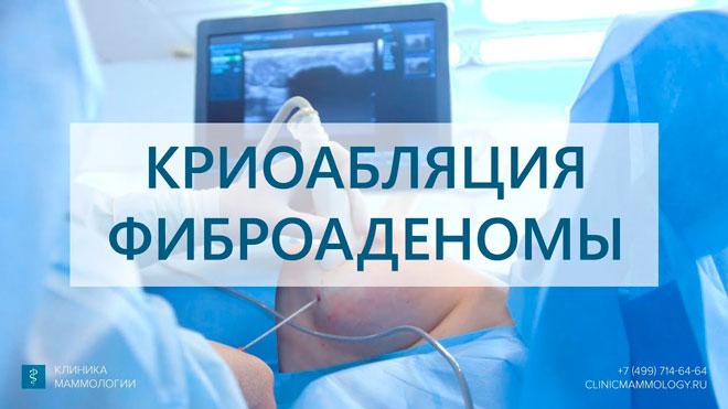 Фиброаденома молочной железы - лечение без операции