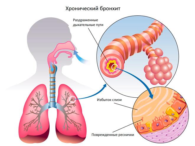 Как заболевают бронхитом