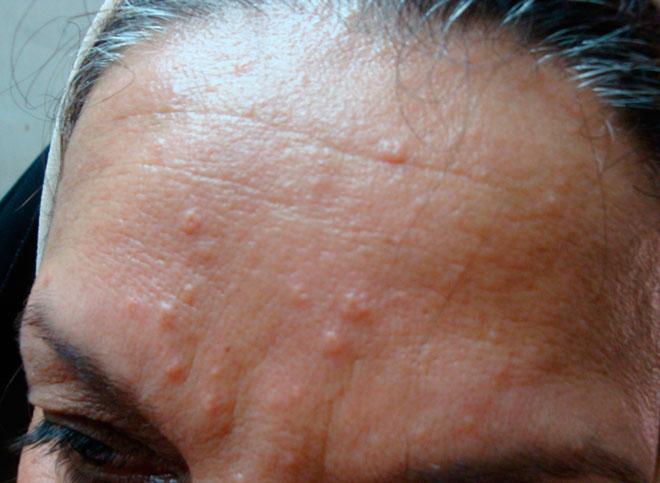 Сальная гиперплазия