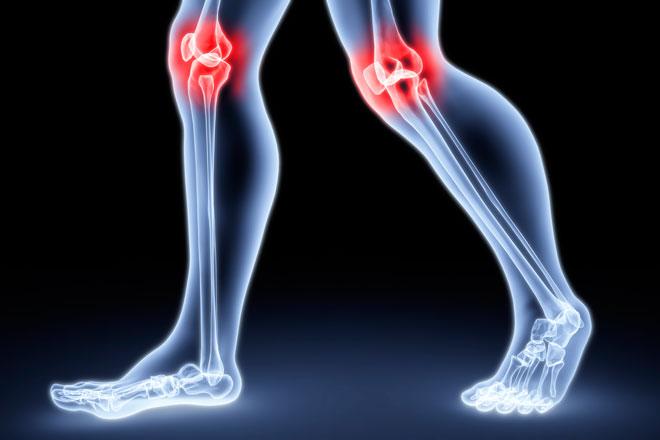 Артрит суставов лечение народными средствами