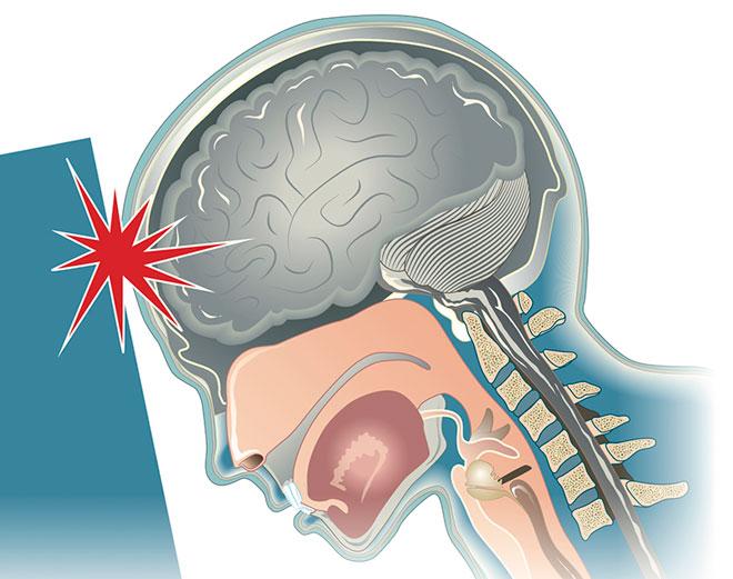 Как проверить сотрясение мозга